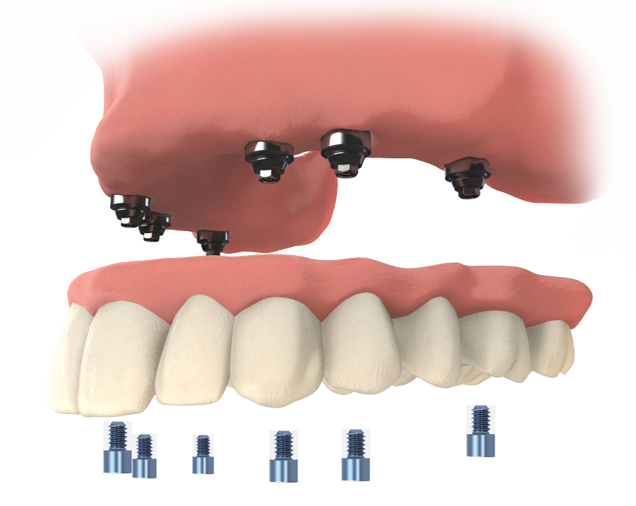 TeethXpress Prosthesis max